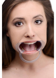 Cheek Retractor Dental Mouth Gag